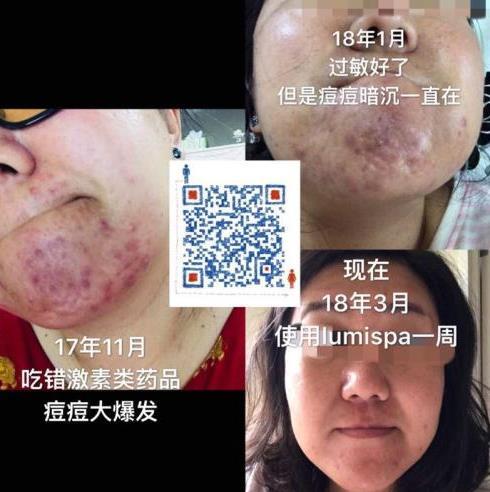洁面祛痘神器LumiSPA帮你彻底清扫肌肤毛孔
